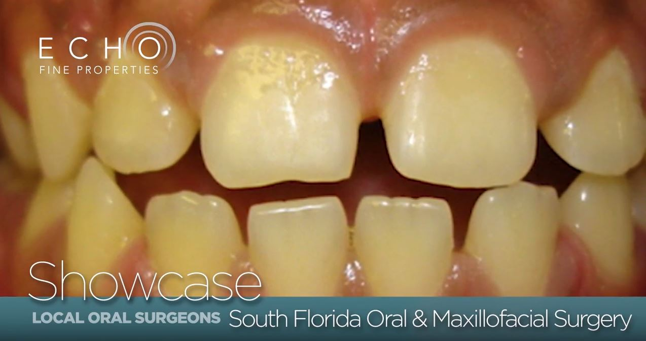 South-Florida-Teeth